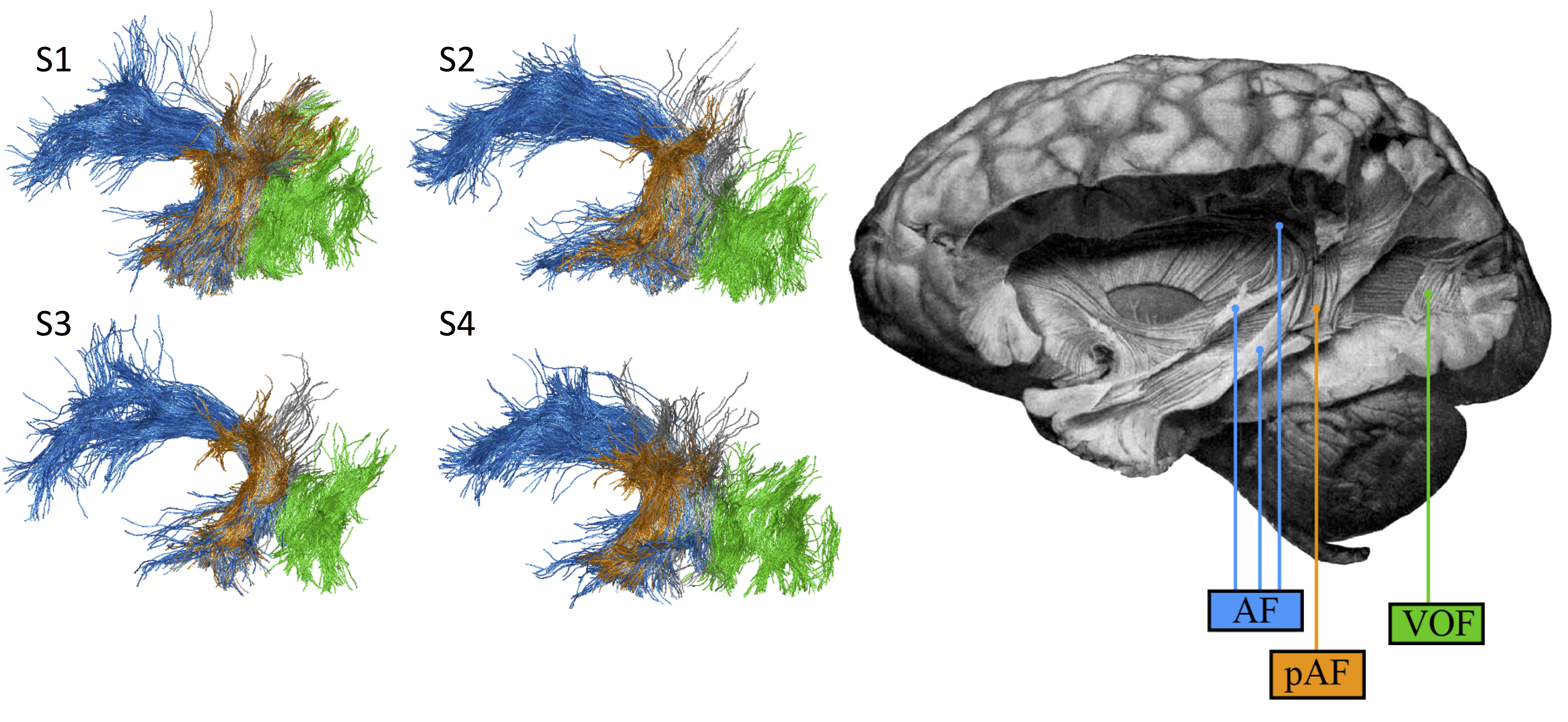 The anatomical connectivity of human cortical systems – Cognitive