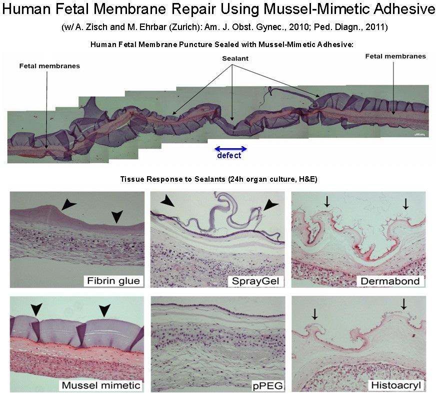 14 human fetal membrane repair using mussel mimetic adhesive